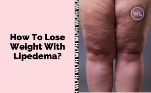 How To Lose Weight With Lipedema Featured Image
